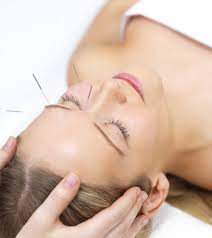 Cosmetic Acupuncture, Phoenix Wellness Whitby